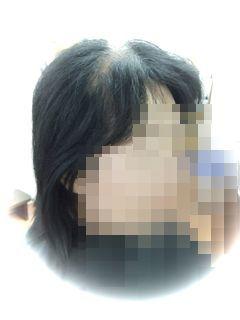 SM様before3