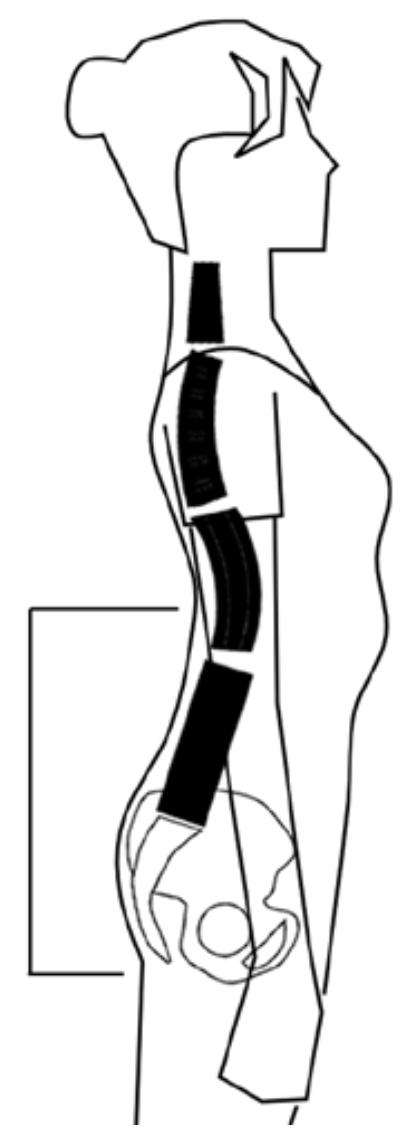 フラット腰椎凹凸曖昧