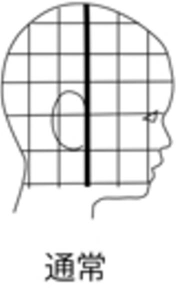 頭部中心正常