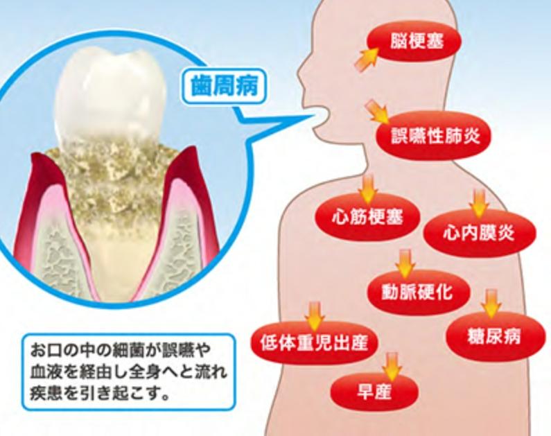 歯周病が全身に及ぼす影響