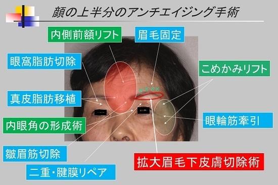 上顔面の手術