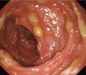 Pseudomembranous-colitis.png