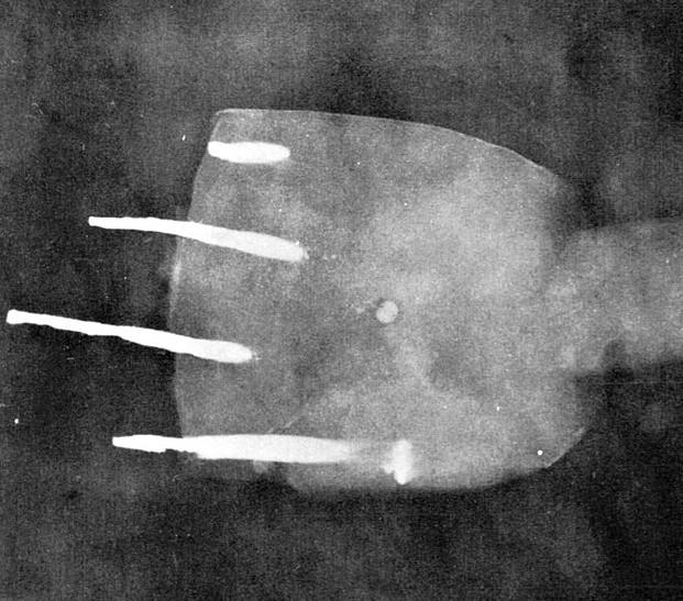 木心乾漆菩薩像の欠失手のX線撮影写真~手の掌の真ん中に珠が見える(本間紀夫著「X線による木心乾漆像の研究」1988刊所載写真)