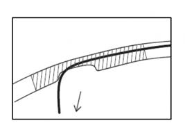 側孔によるバックアップ図