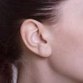 突発性難聴治療
