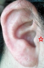 耳のツボ(飢点)