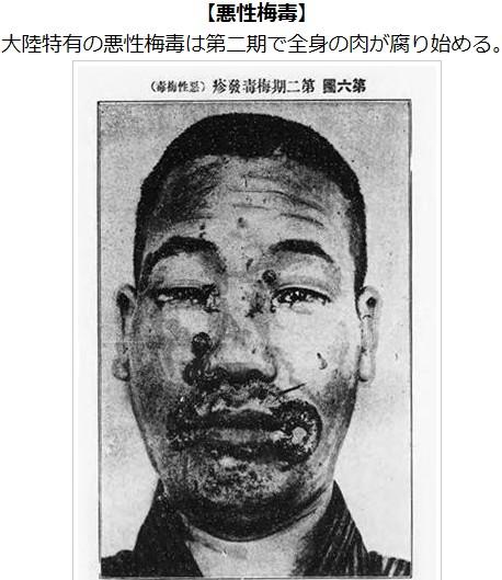 ①韓国朝鮮人国で性病急増!画像や写真でみる性病!