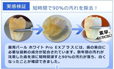 黄ばみ、黒ずみ、虫歯、口臭、歯周炎予防する!ホワイトニング歯磨き【薬用パールホワイトプロEXプラス