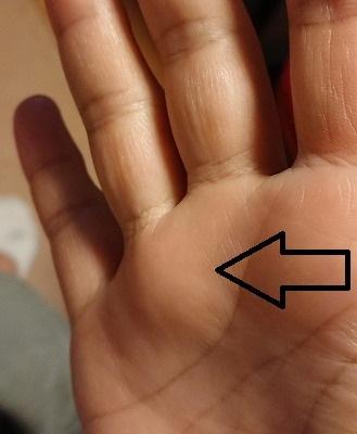 指関節の腫れ2