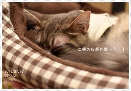 ブドウ膜炎・結膜炎→緑内障・網膜剥離(も!?)4