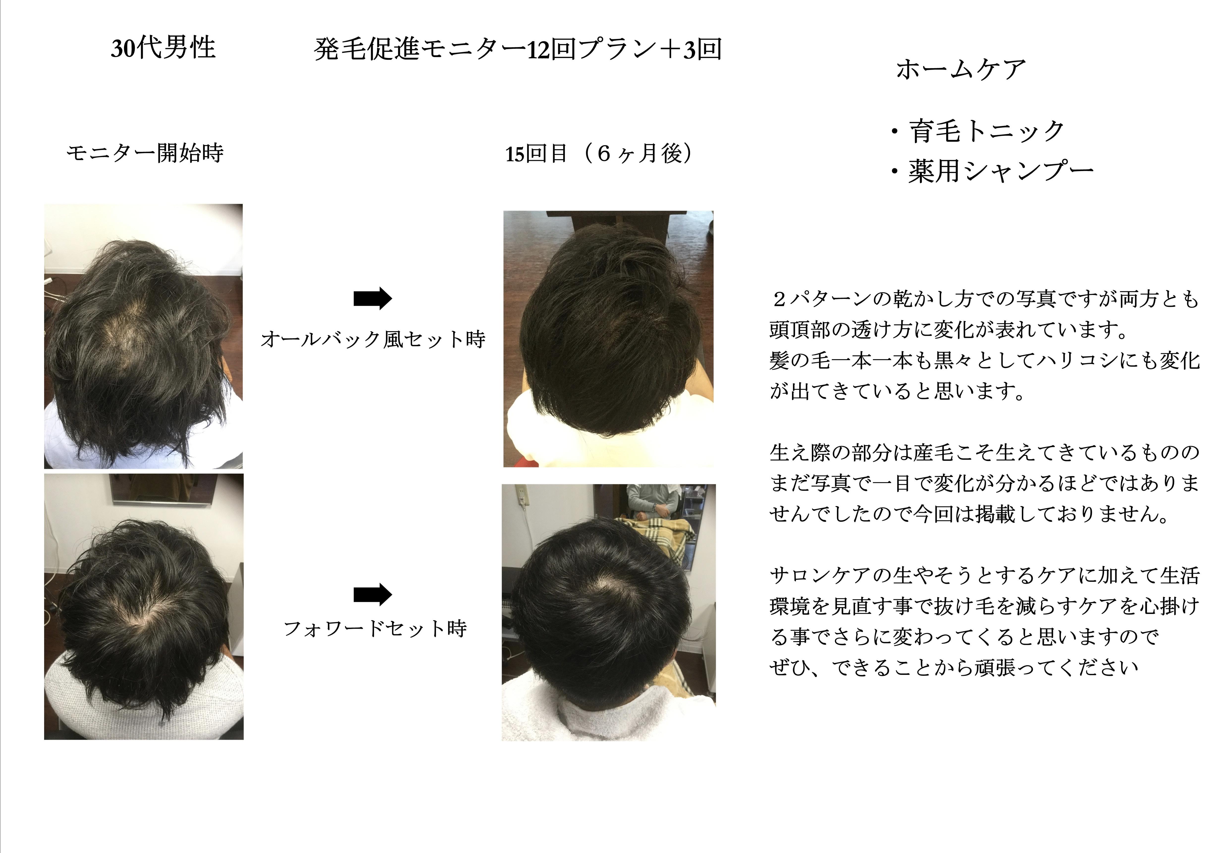 【発毛促進】スカルプモニター 30代男性