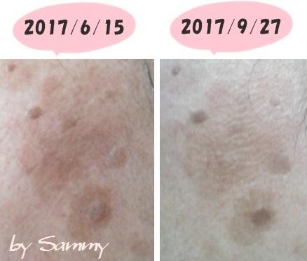 左頬のシミ 20170 6月と9月の比較-1