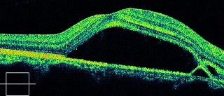 OCT。中心漿液性網膜症